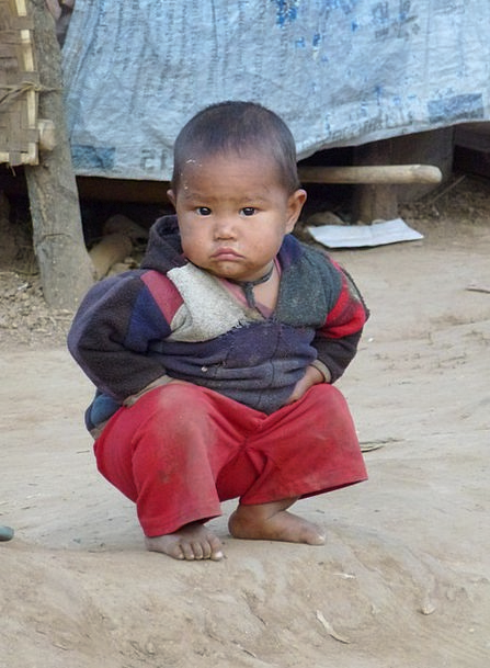 Child Youngster Lad Squat Short Boy Squatting Crou