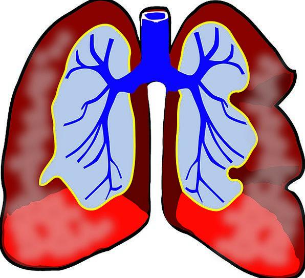 Lungs Humanoid Diagram Drawing Human Medicine Resp