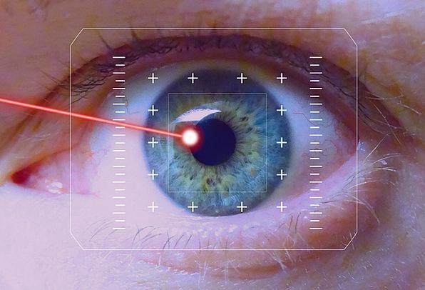 Lasers Judgment Iris Eye Laser Correction Vision C
