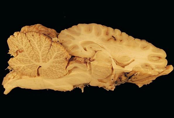 Gerhin Medical Intelligence Health Horse Mount Brain Science
