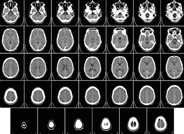 Computer Tomography Medical Health Radiography Ct