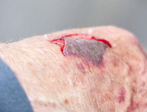 Hand Pointer Wound Coiled Injury Skin Abrasion Blo