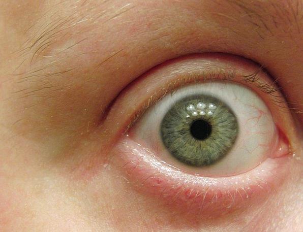 Eye Judgment Instruction Face Expression Macro Eye