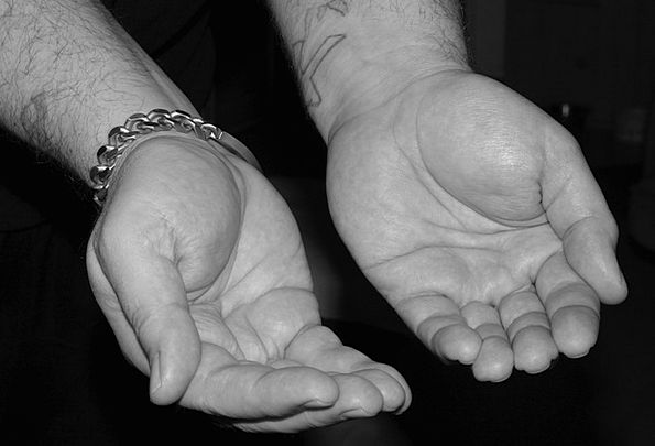 Hands Pointers Lack Little Slight Poverty Poverty