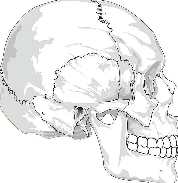 Skull Mind Medical Fractured Health Head Cracked P